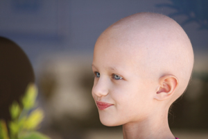 Child with no Hair Due to Chemotherapy Treatments